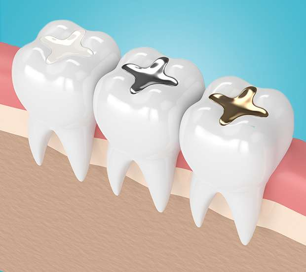 Foothill Ranch Tooth Colored Fillings