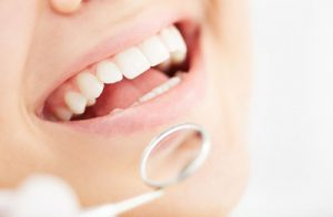 Schedule A Dental Restoration And Save Your Tooth